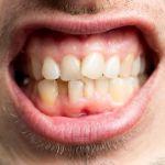 Cara Mengatasi Karang Gigi Secara Alami