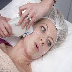 Laser Hair Removal: In this method, a laser destroys hair follicles with heat.