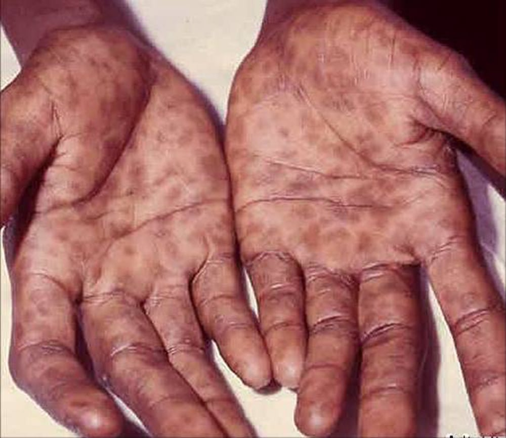 Rash on the palms - a sign of a disease in the body