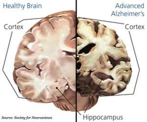 health vs unhealthy brain