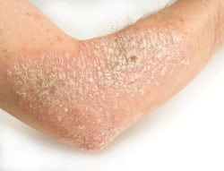 Common skin rashes - psoriasis