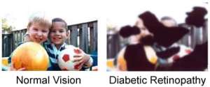 diabetic retinopathy and eye vision