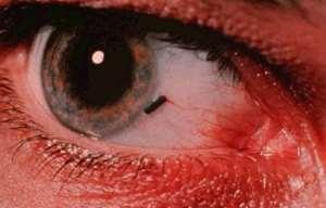 emergency-eye-injury