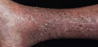 common skin rashes - stasis dermatitis