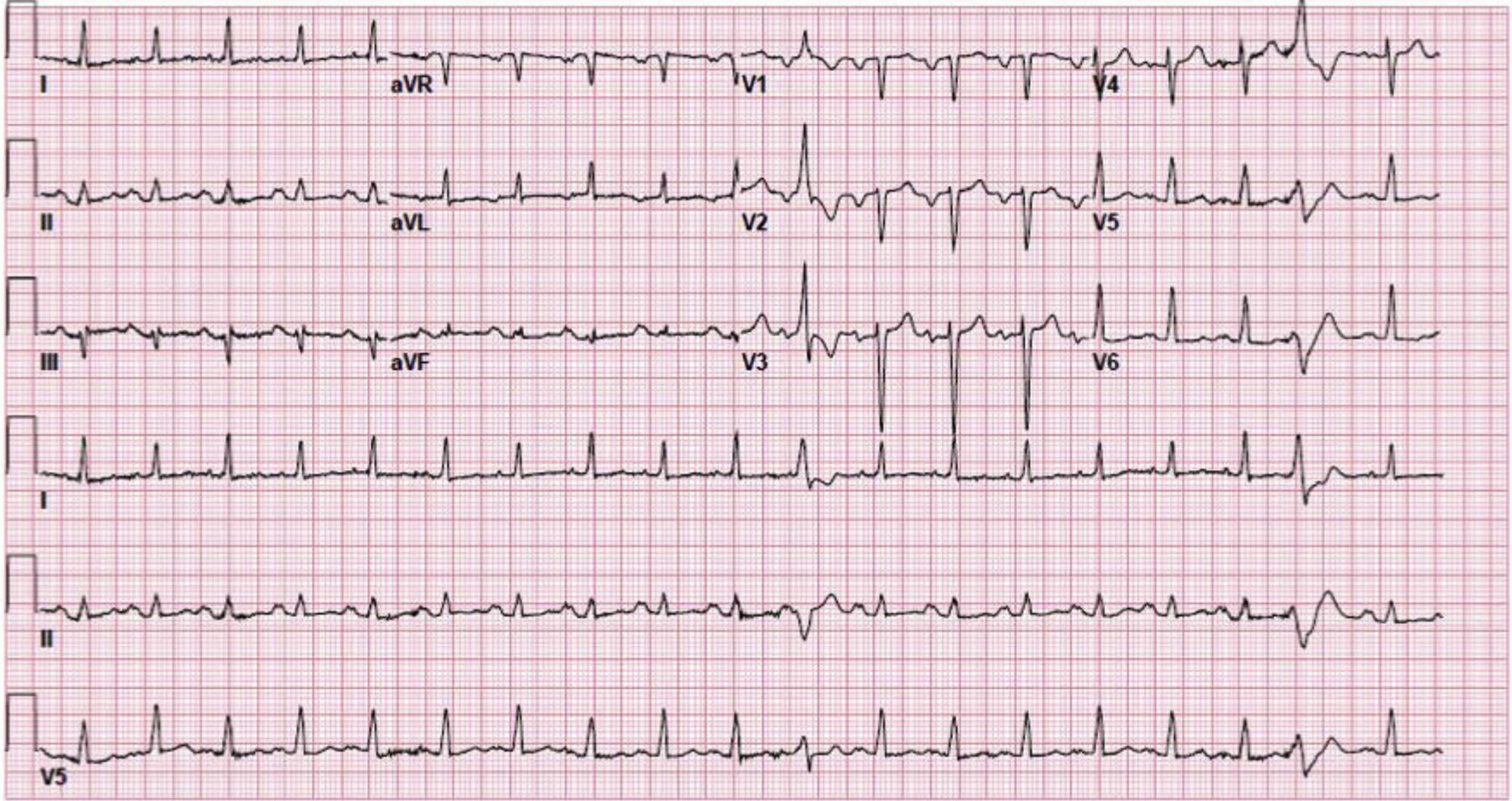 High Dose Adenosine For Treatment Of Refractory Supraventricular Tachycardia In An Emergency
