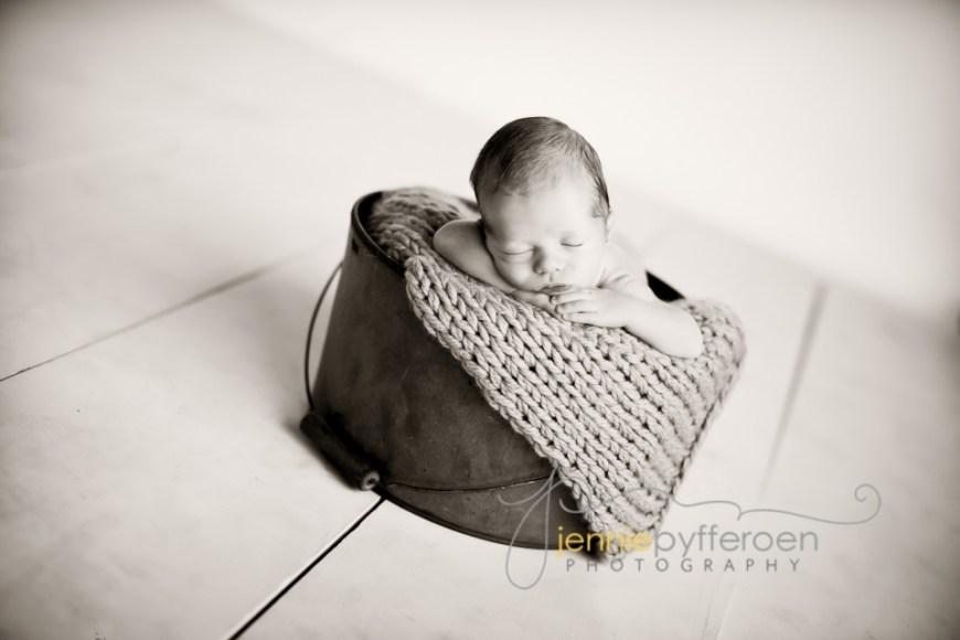 Newborn Jaundice Pictures
