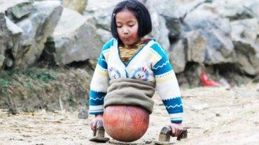 Jej historia wyciska łzy z oczu... Poznajcie Qian, dziewczynkę poruszającą się przy pomocy piłki do koszykówki