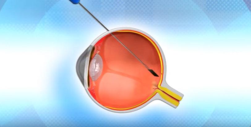 eye-3