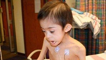 Pomoc dla tego chłopca z Zespołem Downa przyszła w ostatniej chwili, inaczej matka zagłodziłaby go na śmierć! Zobaczcie, jak dziś wygląda