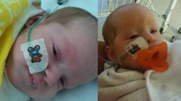 Bliźniaczki w ciężkim stanie trafiły do szpitala, po tym jak odwiedzający je znajomy rodziców pocałował je na przywitanie
