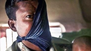 20 lat temu zaatakował go tygrys. Niedawno zdecydował się pokazać światu swoją twarz!