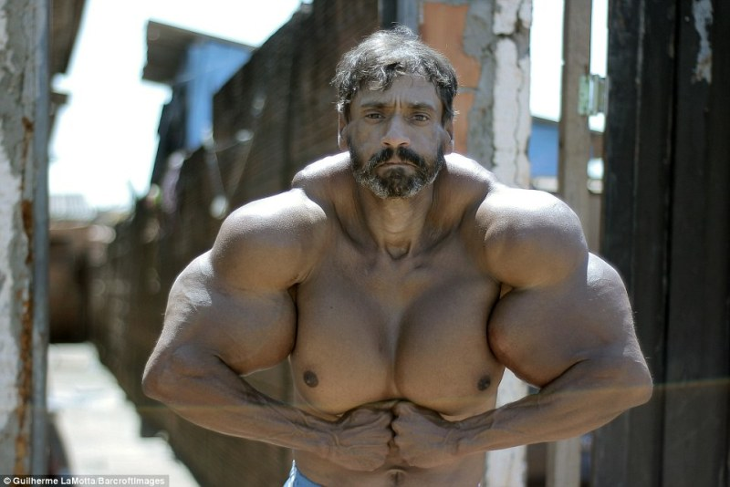 This 48-year-old construction worker wanted to look like a bodybuilder. The result? Children laugh at him and women ignore him! 3