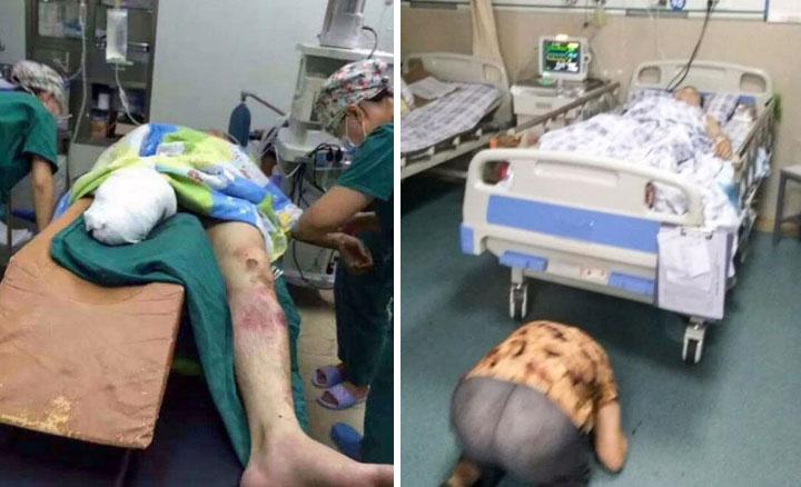29-latek ratując starszą kobietę przed kołami rozpędzonego pociągu, sam stracił nogę. Dla mężczyzny to był pierwszy dzień pracy na kolei...