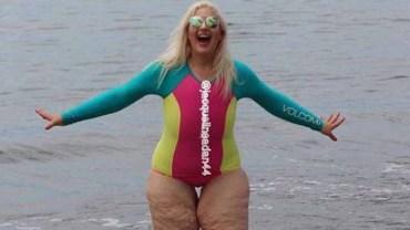 Dziewczyna schudła 158 kilo! Jednak nadal jest okrutnie wyśmiewana, bo po wielkiej wadze pozostał jej nadmiar skóry
