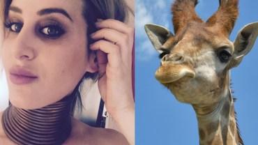 Chciała mieć szyję jak żyrafa! Posunęła się do naprawdę głupiej rzeczy…