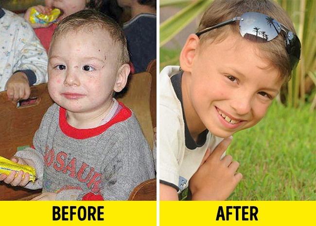 Zdjęcia PRZED i PO adopcji dzieci! Można popłakać się ze wzruszenia...