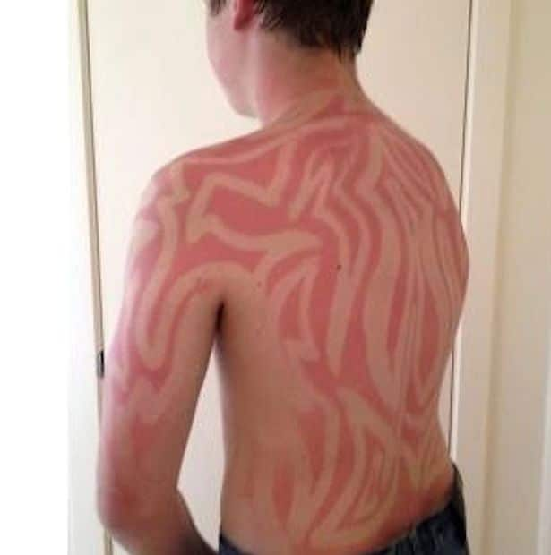 Sunburn-art