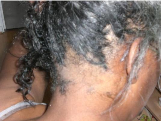 cameroun femme-meurt-apres defrisage jewanda