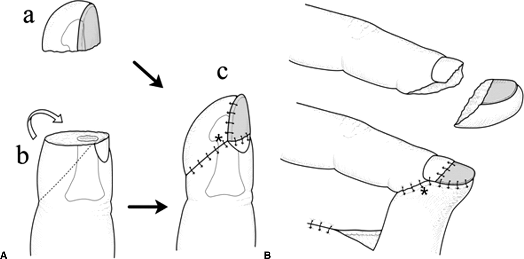 Fingertip Reconstruction With Simultaneous Flaps And Nail