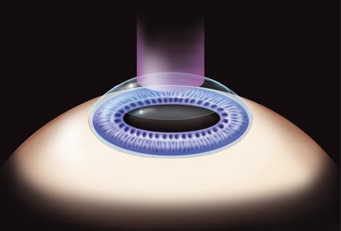 refractive photokeratectomy