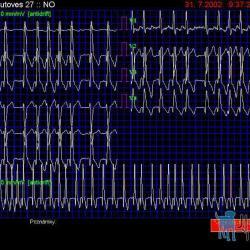 Obr.2 ( EGG 7) – EKG záznam u pacienta s dilatačni kardiomyopatií a srdečním selháním NYHA III. Komplexy QRS deformované, fibrilace síní je proto patrná pouze ve svodu V1 (C1).