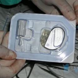 Kardiostimulátor s elektrodami