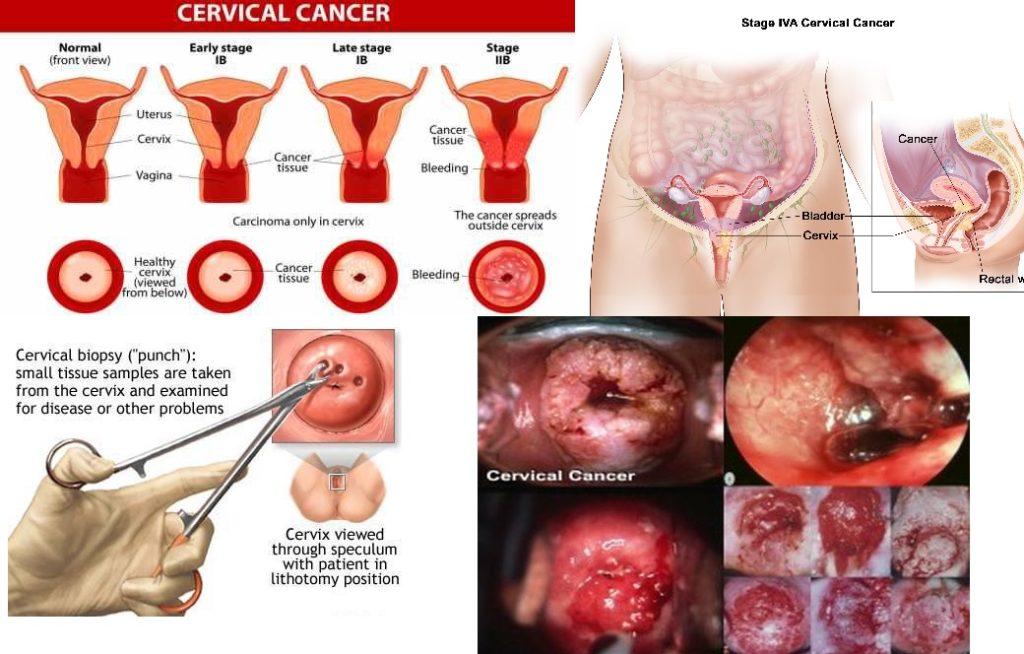 Cervical cancer jabs drive set to kick off | Jihabarishe News