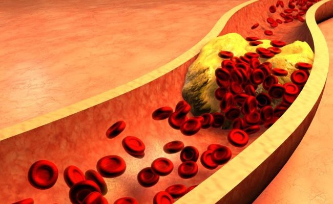 Control your cholesterol before it controls you