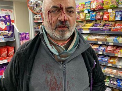 UK Tanzanian businessman injured