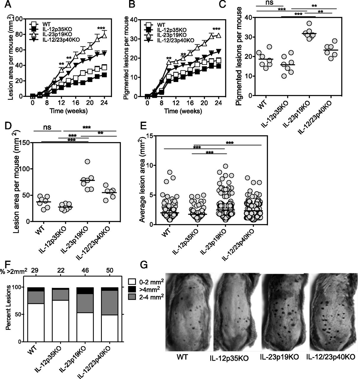 Il 23 Inhibits Melanoma Development By Augmenting Dna Repair And Modulating T Cell