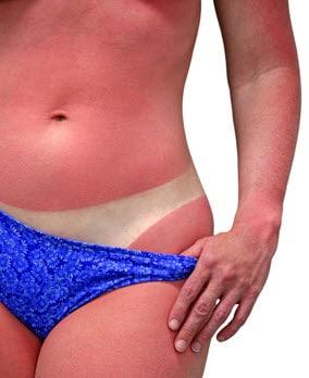 sunburn11.jpg
