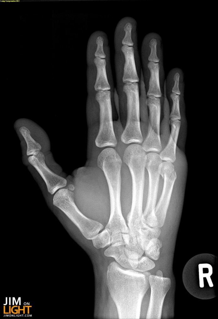 how to draw an x-ray hand
