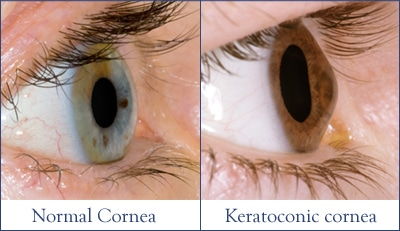 keratoconus-normal