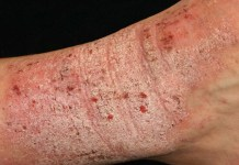 Eczema, Causes, Symptoms, Laser Treatment, and Risk