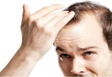 Hair Loss Causes and Permanent Solution