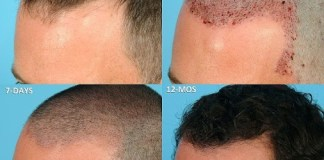 Hair Transplant in Dehradun, Best Treatment at Low Cost