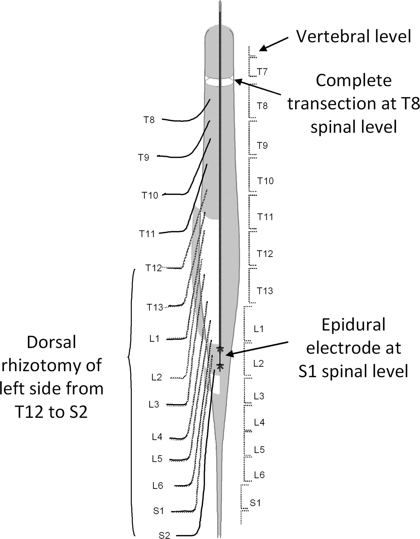 Facilitation Of Stepping With Epidural Stimulation In Spinal Rats Role Of Sensory Input