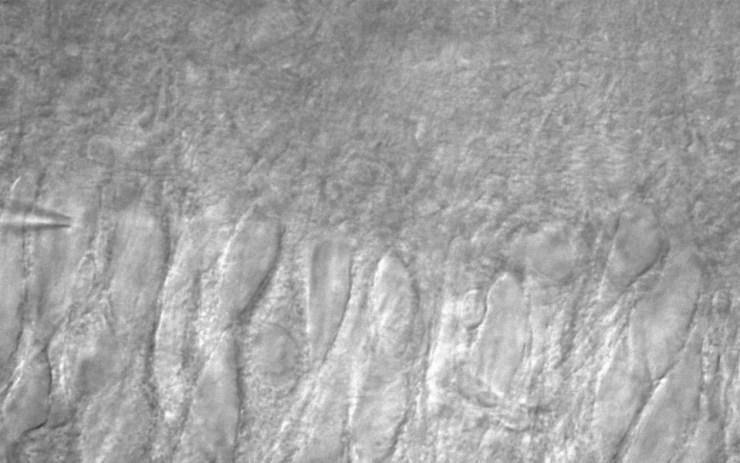 20151209_2_stim1(CA3 pyramidal neuron) for wp