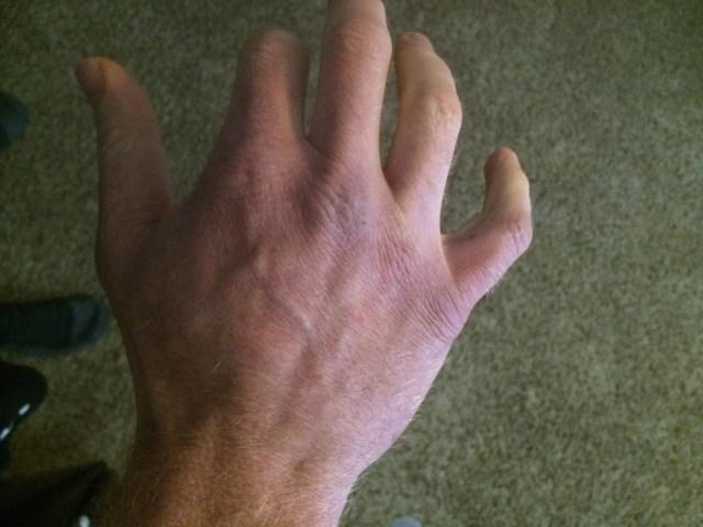 Dead guy hands