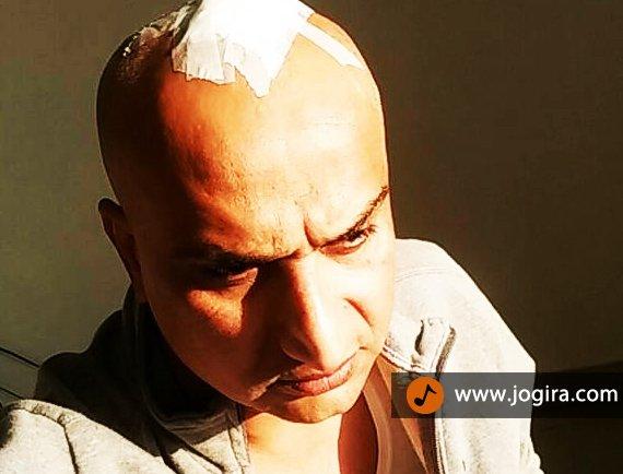awadhesh mishra injured during film shoot