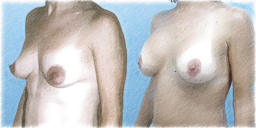 Breast augmentation and lift | John Q. Cook, M.D.