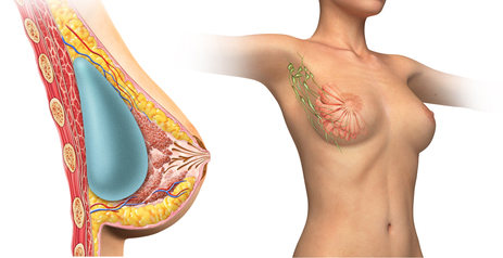 Submuscular vs Subglandular Breast Augmentation