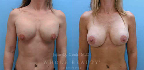 breast-augmentation-pec-repositioning-1a1