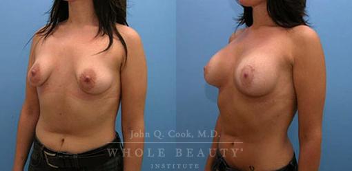 periareolar-mastopexy-with-implants-2b