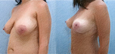 Structural Breast Lift | John Q. Cook, M.D. | Whole Beauty Imstitute