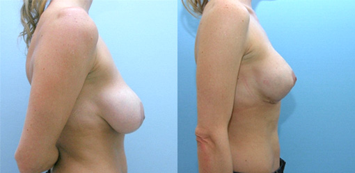 Structural Mastopexy