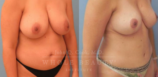 Abdominoplasty with Breast LIft
