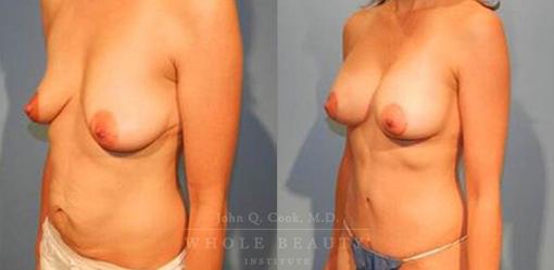 abdominoplasty-case-06-side