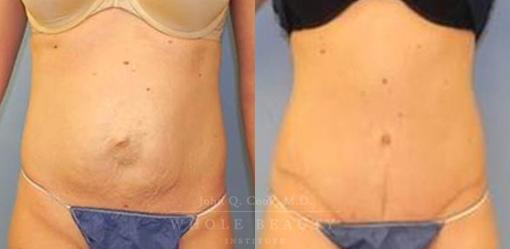 abdominoplasty-case-16