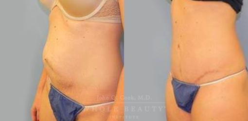 abdominoplasty-case-7-03